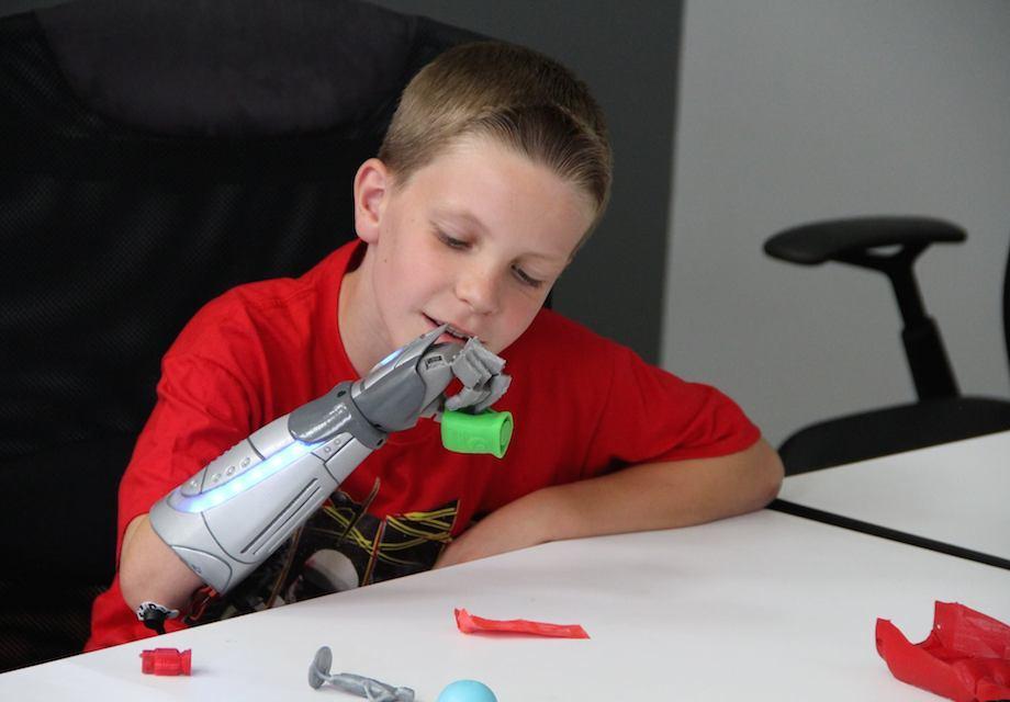 jedi-logan-from-open-bionics-fb